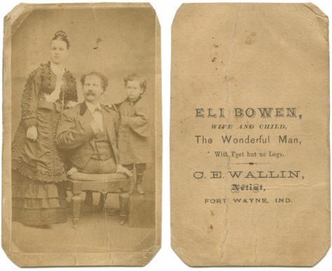 "Eli Bowen, ""The Man with Feet but No Legs"" and family"