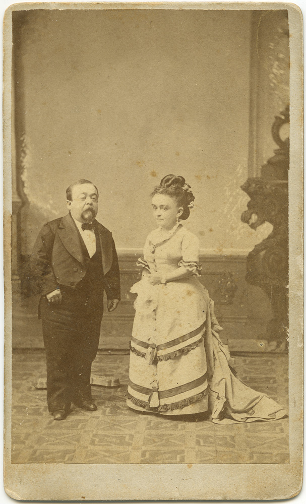 Anonymous CDV, The Thumbs, at middle age